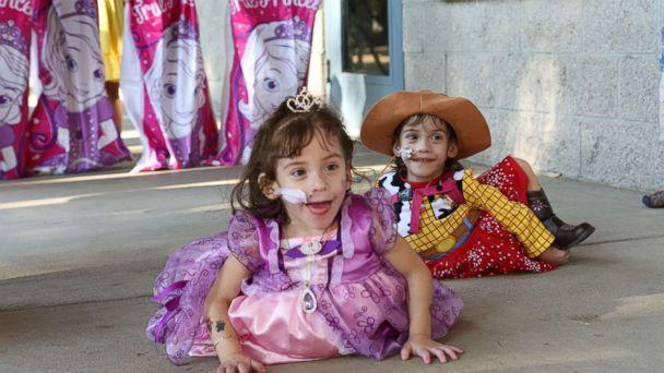 Formerly conjoined twins Eva and Erika Sandoval are seen here celebrating their third birthday. (Jasmine Brown/ABC)