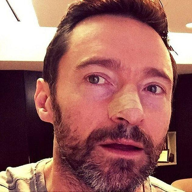 The actor shared a similar image of his bandaged nose last year. Source: Instagram