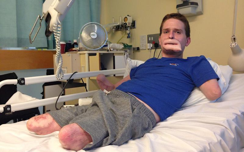 Alex Lewis after an operation in 2014. The quadruple amputee lost all four limbs when a simple cold developed into a flesh-eating bug - Solent News & Photo Agency