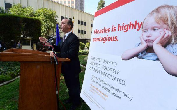 PHOTO: Dr. Jeffrey Gunzenhauser, Interim Health Officer from the Los Angeles County Department of Public Health, briefs the media outside the Department of Public Health in Los Angeles, Feb. 4, 2015, about the measles outbreak in Los Angeles County. (AFP/Getty Images, FILE)