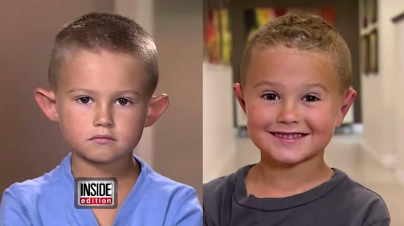 Parents Get Their Six-Year-Old Son Plastic Surgery After Bullies Tease Him