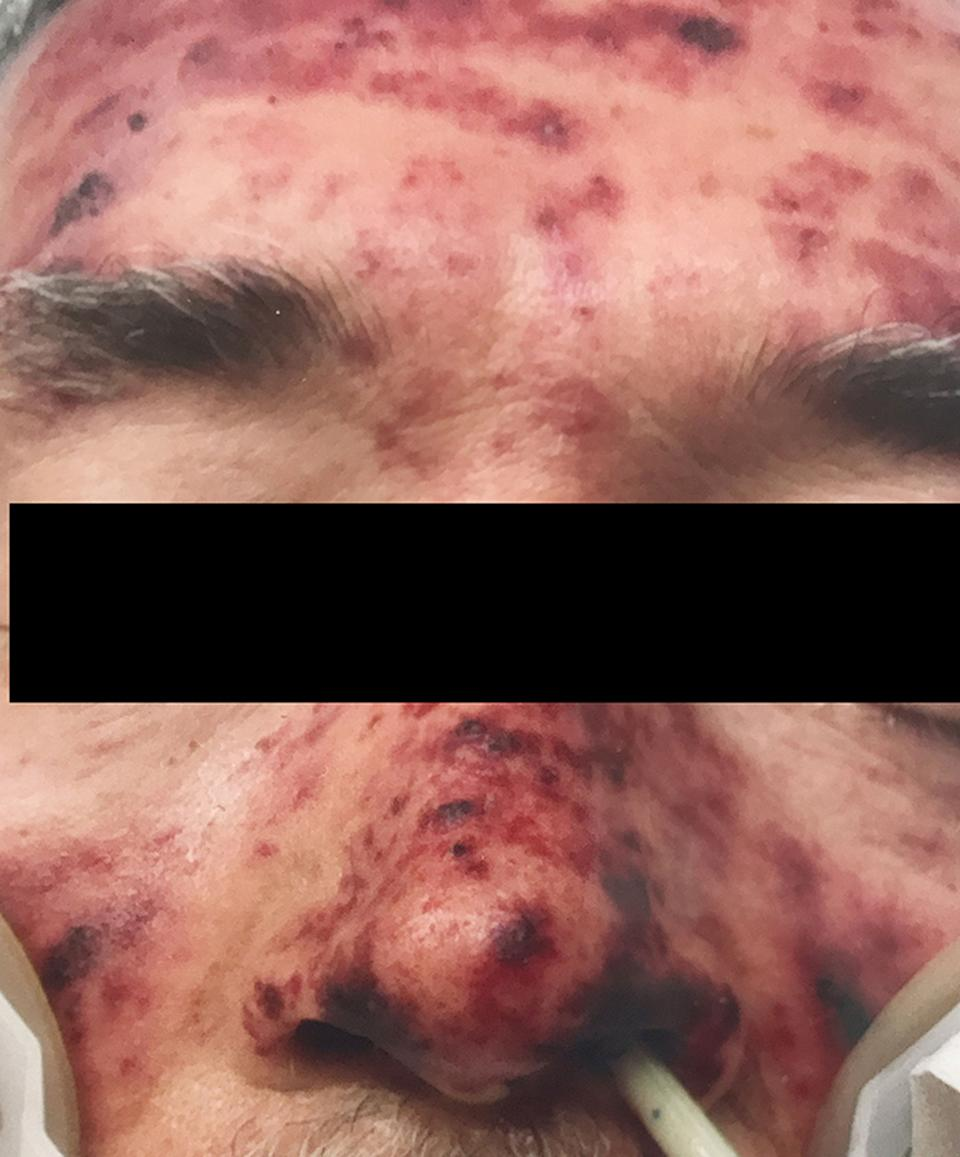 A man with blood spots across his nose, forehead and cheeks.