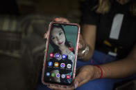Esmeralda Millan shows a selfie taken on Dec. 1, 2018, the day before she was attacked with acid by her ex-partner, at her grandmother's home in the state of Puebla, Mexico, Tuesday, June 22, 2021. Millan's attacker was arrested and jailed on charges of attempted femicide the same year of the attack, which burned her face's entire right side, neck, chest and hands. (AP Photo/Ginnette Riquelme)