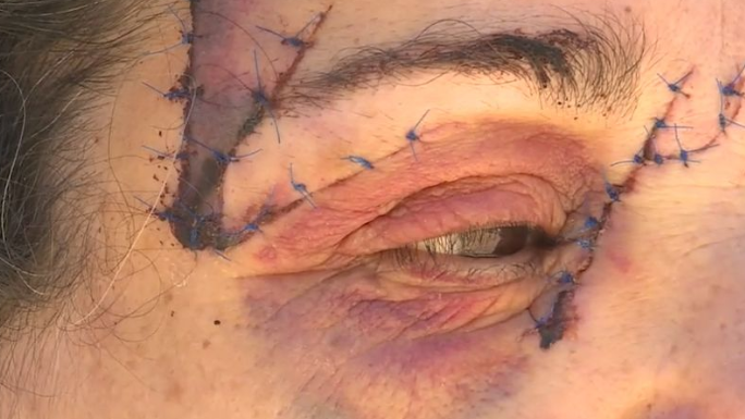 Pictured are 25 stitches Dina required near her eye. Source: Nine News