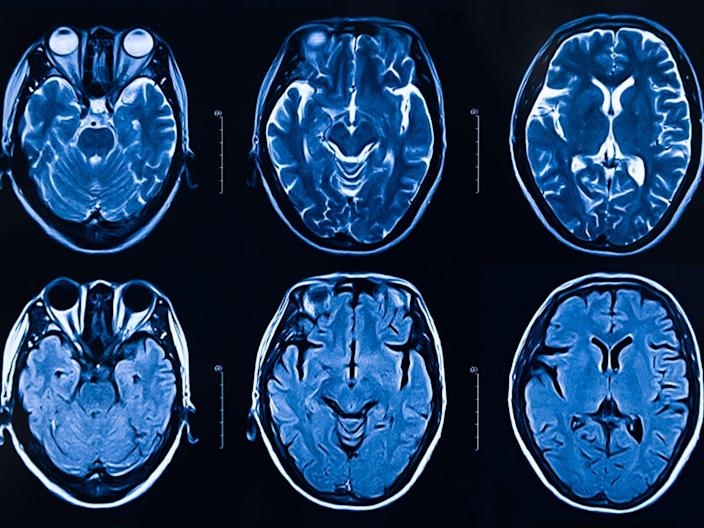 Scientists say more research needs to be done to determine the all-round effect that Covid-19 has on the brain (Getty)