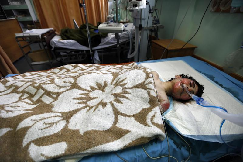 Sally Sakr, 20-years-old, from the Palestinian centre for people with special needs lies in a hospital bed in Gaza City on July 12, 2014, after the center housing her was targeted by an Israeli air strike