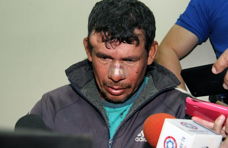 Gilberto Benitez Zarate, accused of raping his 10-year-old stepdaughter, is questioned by the press after being arrested on May 9, 2015 in Asuncion
