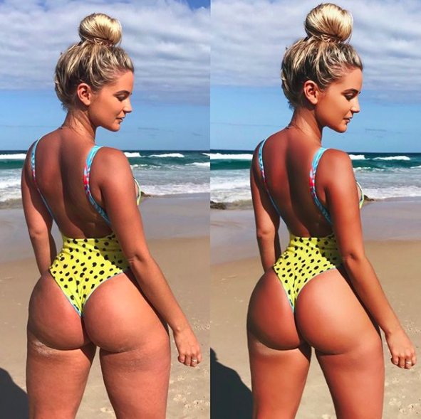 Karina is happy to own her ezcema and cellulite - and wants everybody else to do the same. Photo: Instagram/karinairby
