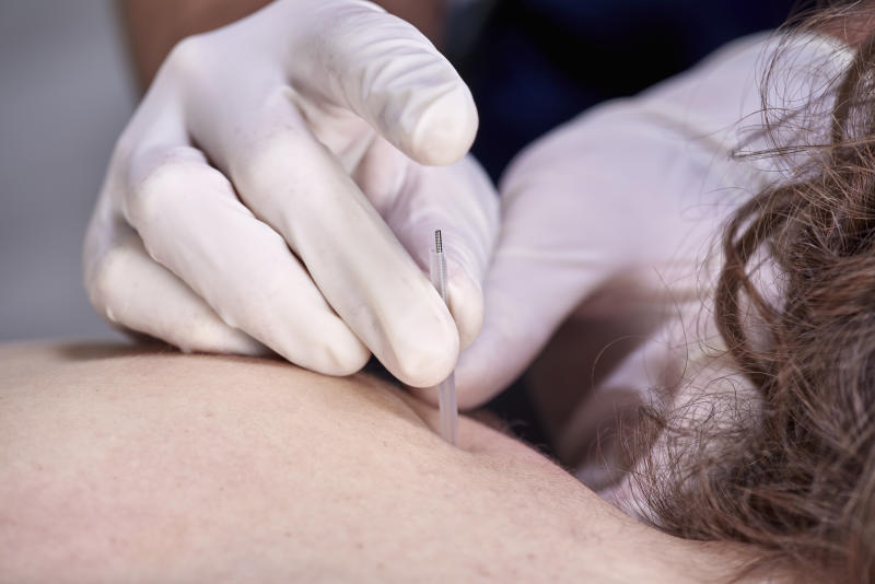 Chiropractor doing dry needling, closeup of a needle and hands. Physiotherapist, osteopath, manual therapy, acupressure. Acupuncture, alternative medicine.
