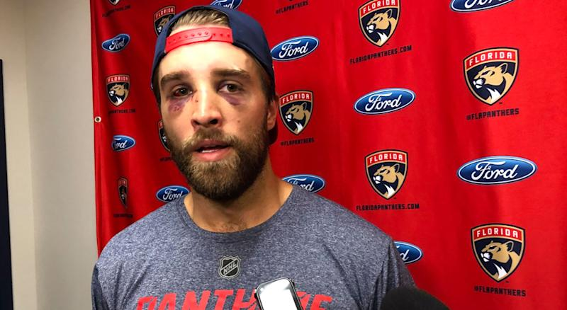 Busted Up Ekblad On Domi Sucker Punch Scores Will Be Settled