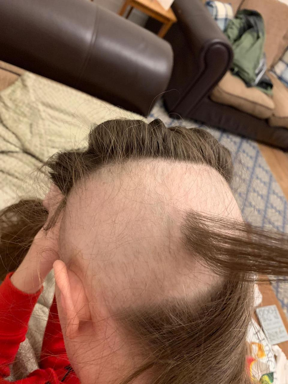 Pictured is Emma Bond and her hair loss during her brain tumour treatment.