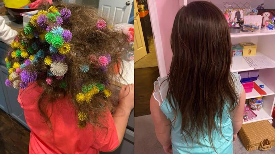 Lisa Hoelzle's 6-year-old daughter had 150 Bunchems tangled in her hair. (Images via Facebook/LisaHoelzle)