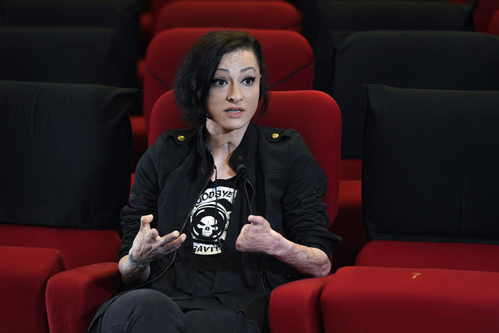 """Tedy Ursuleanu, a survivor of the Colectiv nightclub fire, speaks during an interview with the Associated Press at the Elvire Popesco cinema in Bucharest, Romania, Monday, April 12, 2021. The Oscar-nominated Romanian documentary film """"Collective"""" follows a group of journalists delving into the state of health care in the eastern European country in the wake of a deadly 2015 nightclub fire that left dozens of burned victims in need of complex treatment. What they revealed was decades of deep-rooted corruption, a heavily politicized system scarily lacking in care. (AP Photo/Andreea Alexandru)"""
