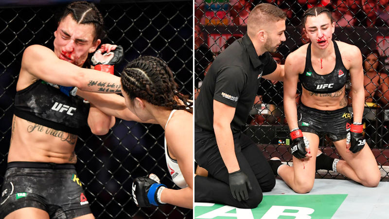 Nadia Kassem, pictured here after copping a beating at UFC 243.