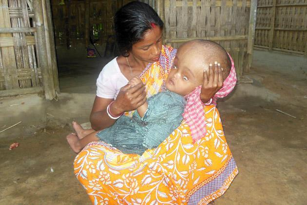 Fortis Foundation has decided to take up another case of a year old Sajal Sarkar from Taltala village in Tripura.