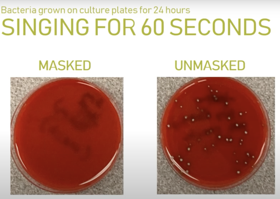 Wearing a mask while singing was shown to dramatically reduce the bacteria spread. Source: Microbiology Lab at Providence Sacred Heart Medical Center & Children's Hospital