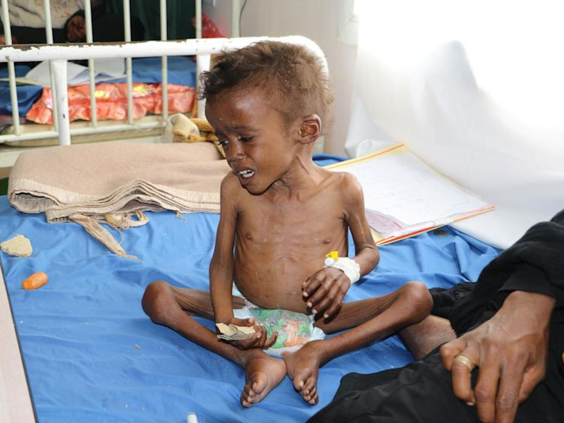 As many as 460,000 children face severe malnutrition in Yemen and 70 per cent of the population struggle to feed themselves (Reuters/Naif Rahma)