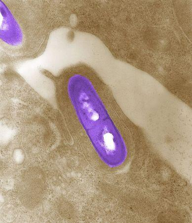 Handout image of electron micrograph of a Listeria bacterium in tissue