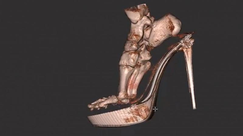 3-D Scan Reveals Foot Damage by High Heels