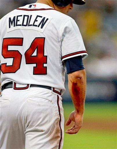 Blood is seen on the arm of Atlanta Braves' Kris Medlen from a collision with Miami Marlins first baseman Logan Morrison after Medlen hit a bunt ground ball to score teammate Chris Johnson, in the third inning of a baseball game, Tuesday, July 2, 2013, in Atlanta. (AP Photo/David Goldman)