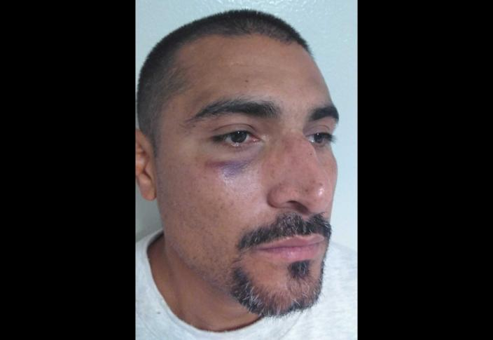 A man with bruising under and around his right eye