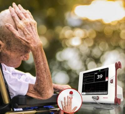 Medasense has been awarded a development grant, to extend the application of NOL pain response monitoring for noncommunicating dementia patients. (PRNewsfoto/Medasense Biometrics Ltd.)