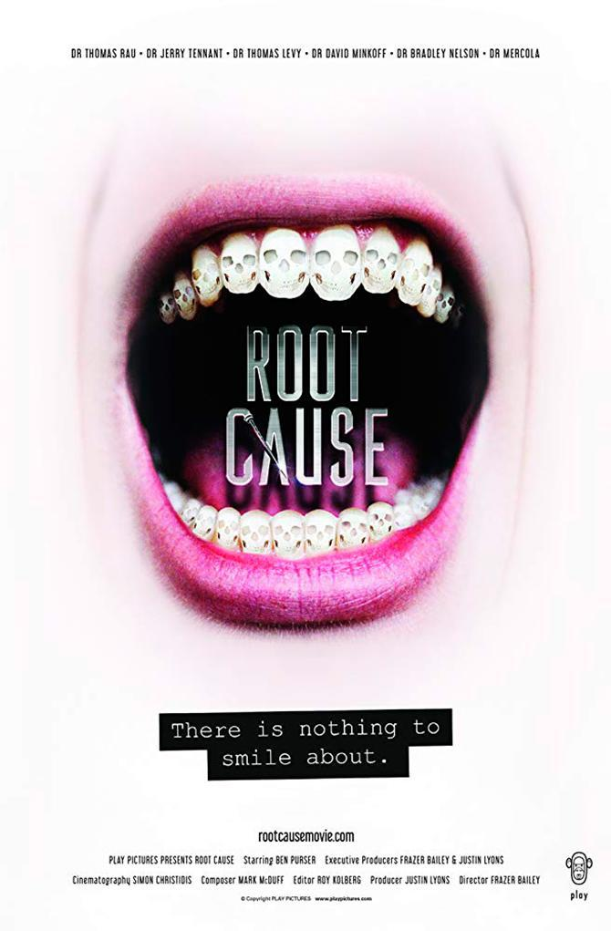 Cartel de Root cause