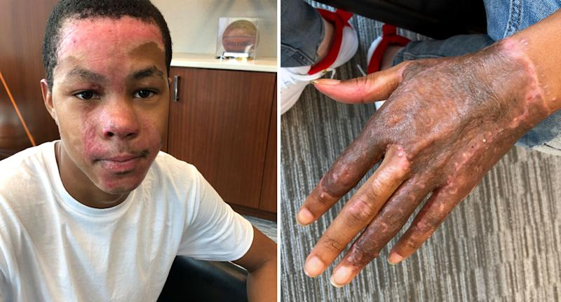 Teen Malachi McFadden pictured with burned face and hand after science teacher's experiment went wrong.