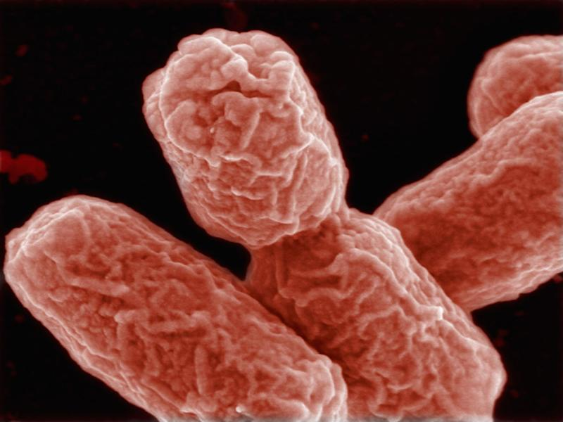 Bacteria like E coli have a vulnerability in their outer layer that could be targeted with new medication: HZI/Getty