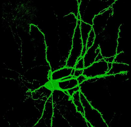Brain's building block: a spiny neuron.