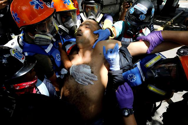 <p>An injured man receives help at a rally against Venezuelan President Nicolas Maduro's government in Caracas, Venezuela, July 26, 2017. (Photo: Carlos Garcia Rawlins/Reuters) </p>