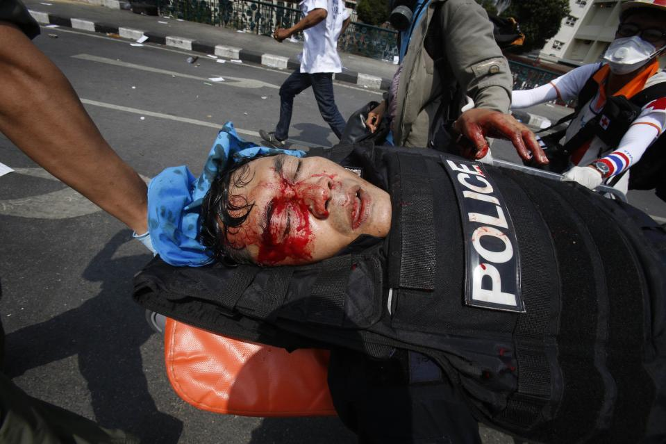 An injured Thai policeman is wheeled away from the scene of an explosion during clashes with anti-government protesters near Government House in Bangkok February 18, 2014. At least three police officers were wounded as Thai authorities launched an operation to clear anti-government protesters from streets in Bangkok on Tuesday. REUTERS/Athit Perawongmetha (THAILAND - Tags: POLITICS CIVIL UNREST)