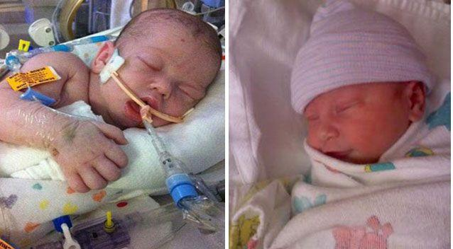 Landon went into cardiac arrest and was rushed back to hospital where he received CPR and was put on life support but died 15 days later. Pictures: Facebook