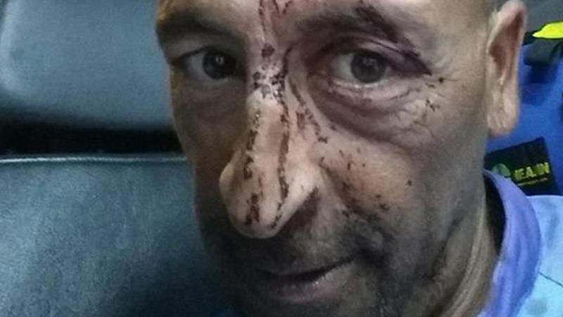 Captain Oliver Galea suffered a deep gash when a whale smashed into his charter boat in Qld.