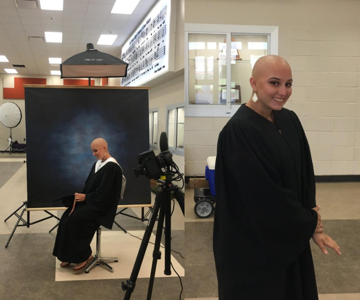 Morgan Carnish, who lost all her hair to cancer treatments, poses confidently for her high school senior portrait.