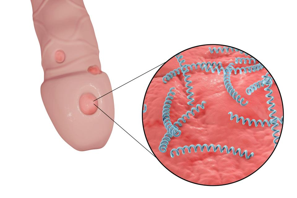 Syphilis ulcer on penis and close-up view of syphilis bacteria (Treponema pallidum), computer illustration.
