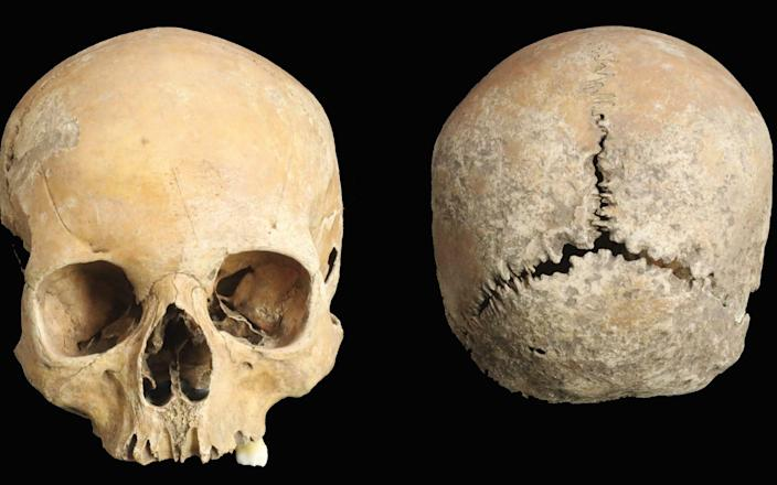 The girl's skull, which was found in a spoil heap produced during the excavation of a burial site - Antiquity/Antiquity