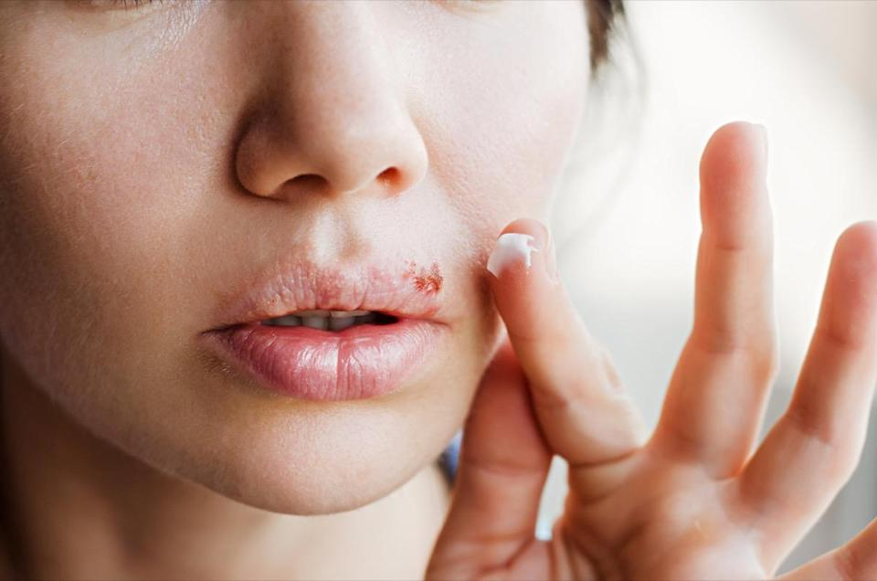 Part of a young woman's face with a virus herpes on lips, treatment with ointment