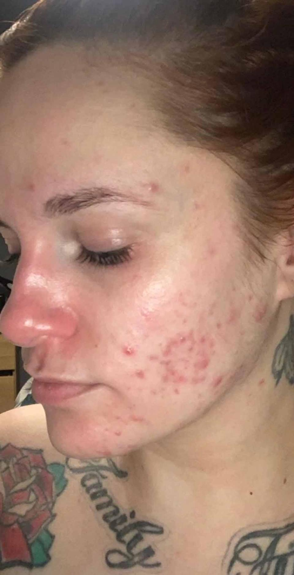 Kerrie, pictured in early summer 2020, before she started using Utan, had severe spots for 14 years. PA REAL LIFE/ COLLECT