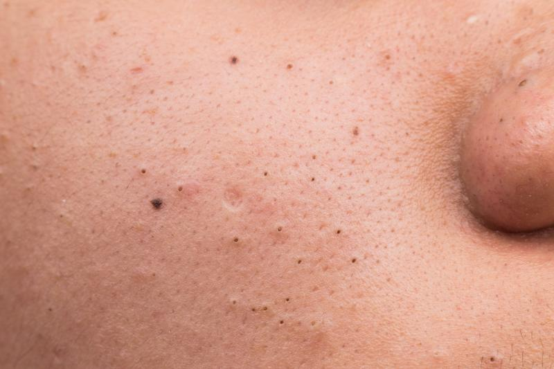 Here are year's best blackhead popping videos — so far
