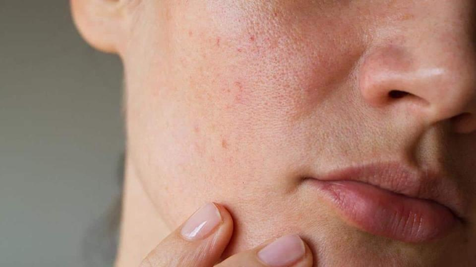 Some effective ways to minimize the appearance of skin pores