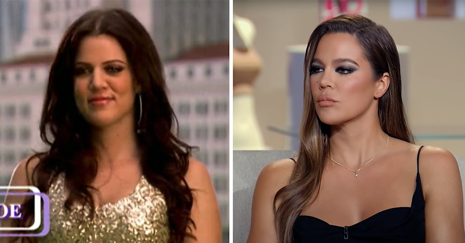 Khloé Kardashian before and after