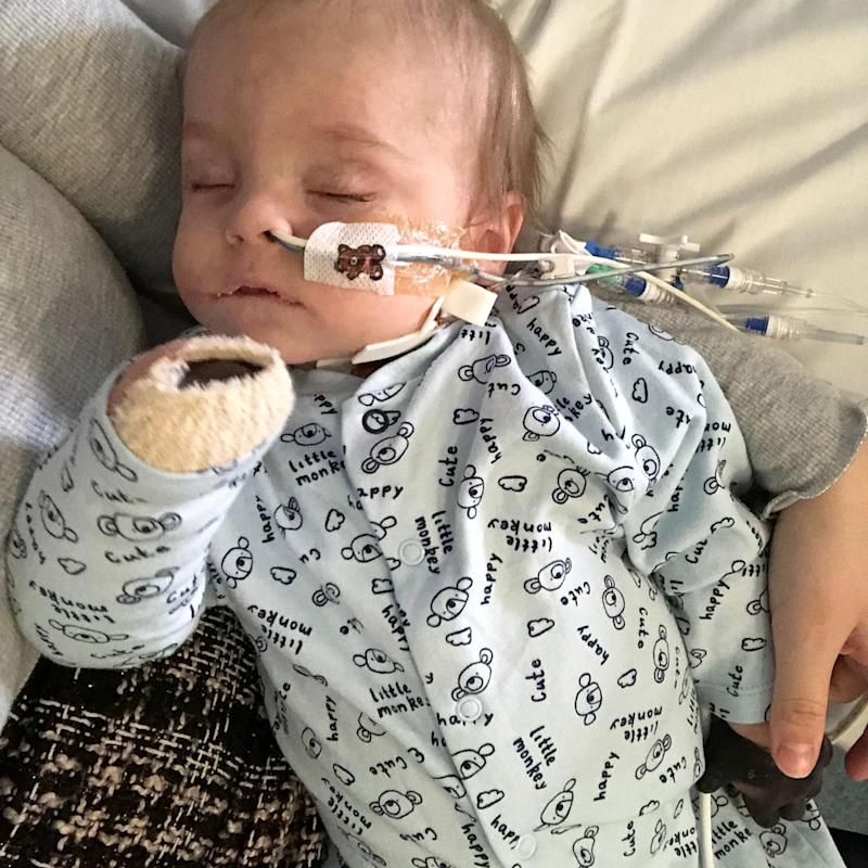 His parents were warned Oliver might not recover from sepsis [Photo: Caters]