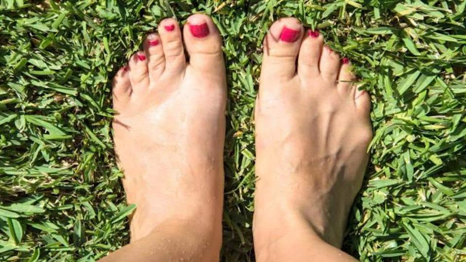 Swollen feet during pregnancy: Effective remedies to relieve the condition