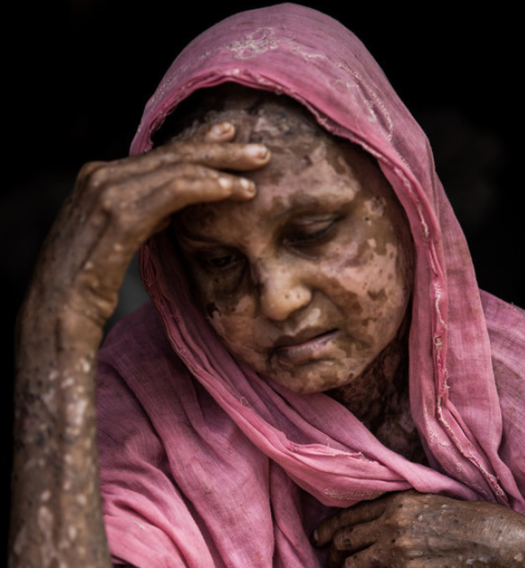 Shara Jahan, sitting for a portrait in Bangladesh's Kutupalong Refugee Camp, was badly burned before she fled Myanmar. (Andrew Stanbridge/Amnesty International)