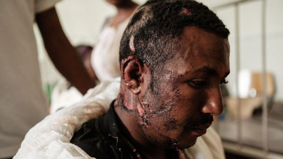 A man who was injured in Ethiopia's reported air strike is treated at Aider hospital in Mekelle, Ethiopia. Photo: 23 June 2021