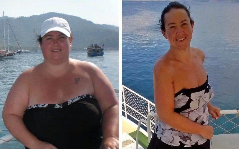 Angela Chesworth before and after her bariatric surgery