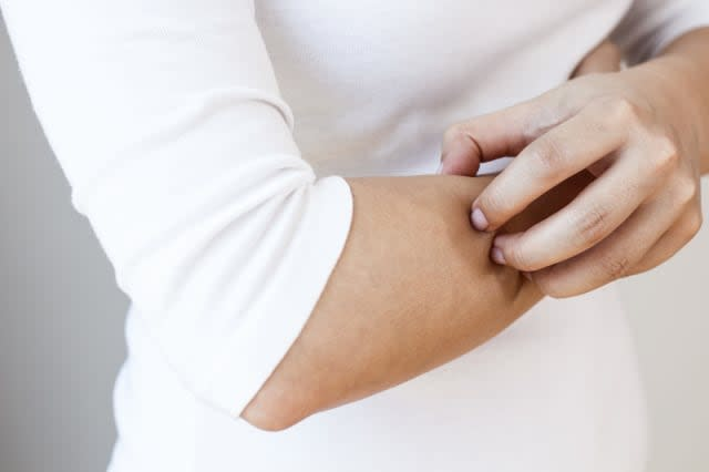 Caucasian woman is scratching her arm. Torso of woman with white shirt and jeans is shown under natural light, horizontal