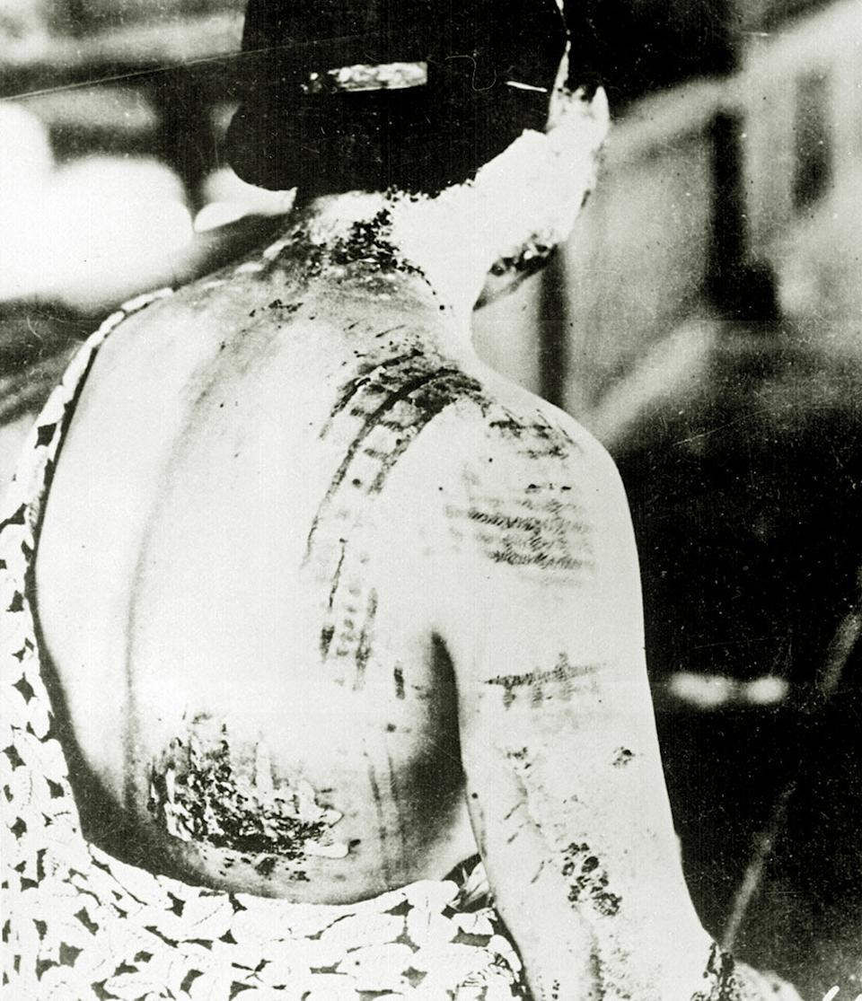 A woman shows burns on her neck, shoulders and back