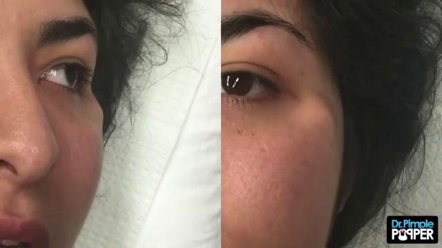 Dr Pimple Popper Watch The Cottage Cheese Explode Out